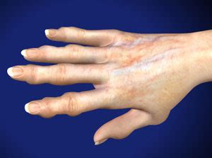 Hand and Wrist - Albany & Saratoga Centers for Pain Management