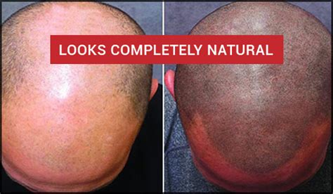 Scalp Micropigmentation (SMP) Treatment & Cost in Chennai