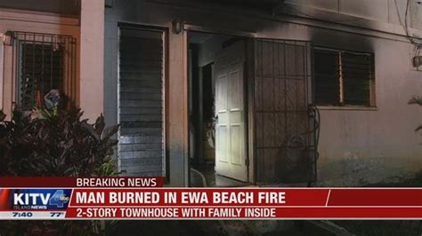 Oahu man hospitalized with burns after early morning Ewa
