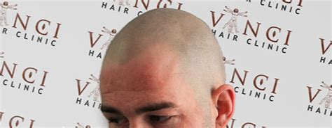 Are there any adverse reactions to scalp micropigmentation
