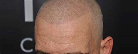 What Is (SMP) Scalp Micropigmentation - Benefits & Risks